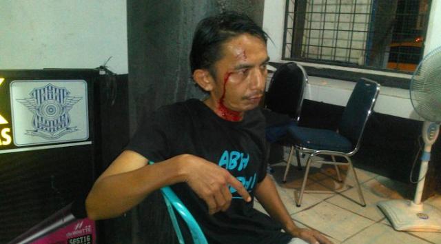 salah satu korban yang mengalami luka dibagian kepala yakni sopir taksi bernama Irza Syandra.
