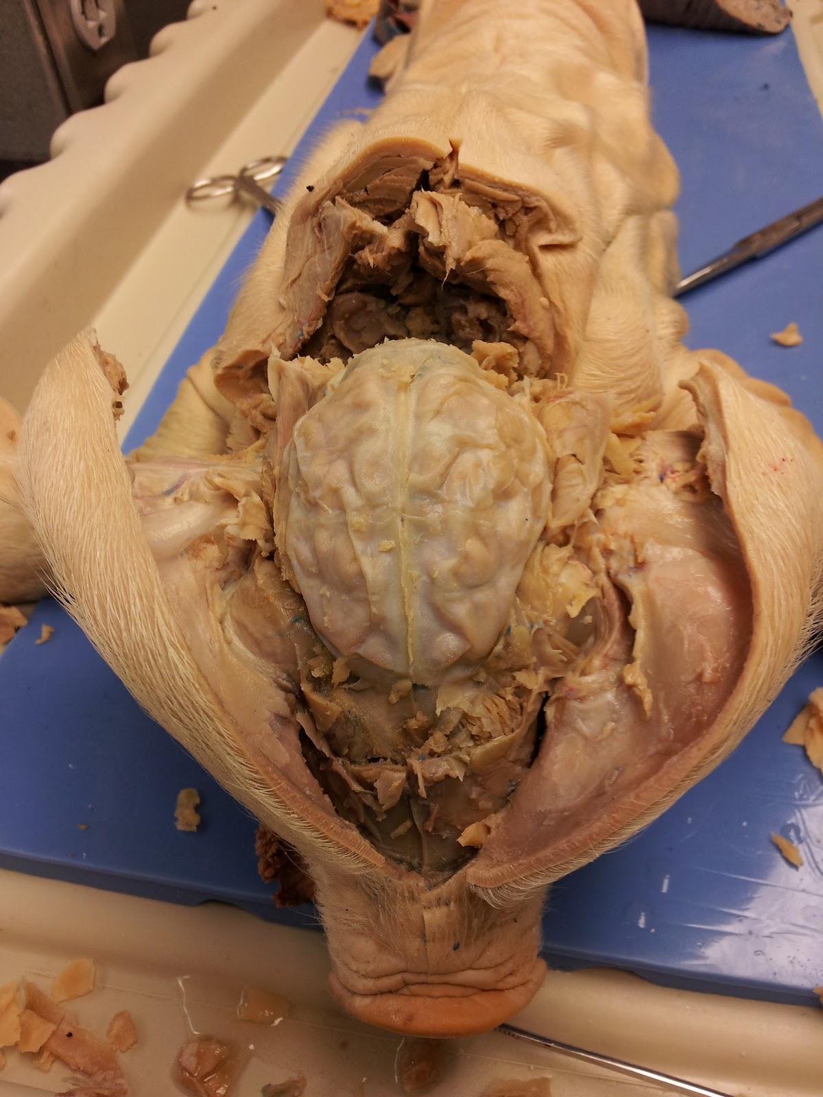 Fetal Pig Spinal Cord Diagram Double Bubble Destroyer