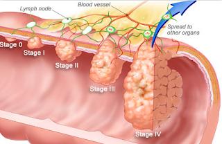 cara menyembuhkan kanker usus besar stadium 4