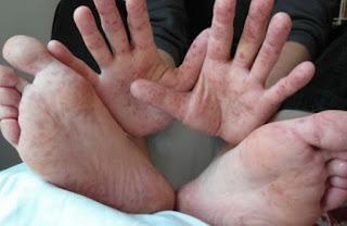 Cara Mengobati Bercak Merah Pada Telapak Kaki dan Tangan