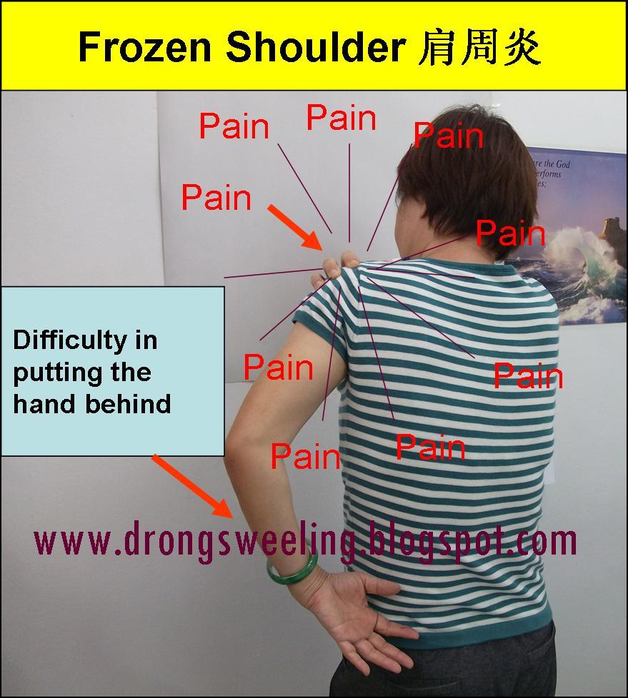Tcm News Tcm And Frozen Shoulder