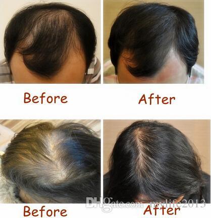 astuces pour faire repousser les cheveux et lutter contre la chute naturellement. Black Bedroom Furniture Sets. Home Design Ideas