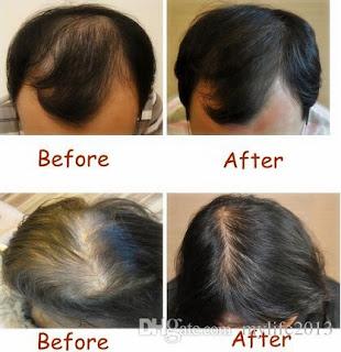 astuces pour faire repousser les cheveux et lutter contre la chute naturellement la beaut. Black Bedroom Furniture Sets. Home Design Ideas