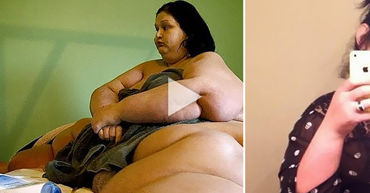 """Biggest Woman"" in the World loses 800lbs, amazing transformation"