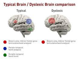 Dyslexic Brain