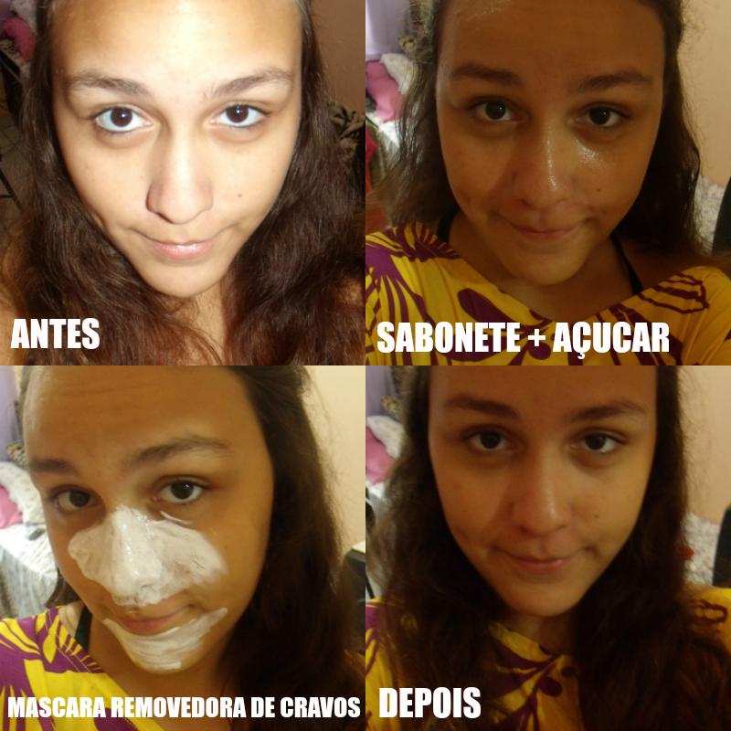 Esfoliação caseira facial
