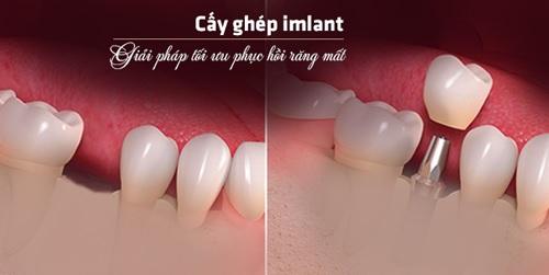 trồng răng cấm bằng phương pháp cấy ghép Implant -33