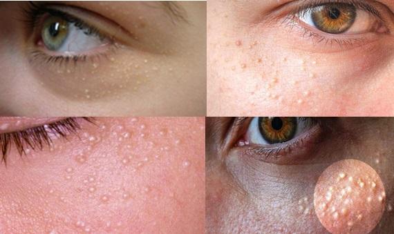 Cara Menghilangkan Bintik Putih Di Sekitar Mata