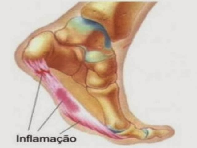 Gravidez durante em início o dor da uma perna