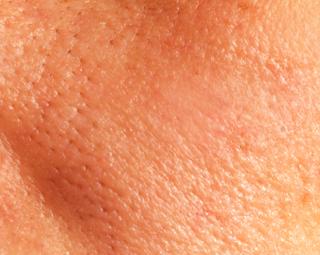 Cara Alami Menutup Pori Wajah secara Cepat