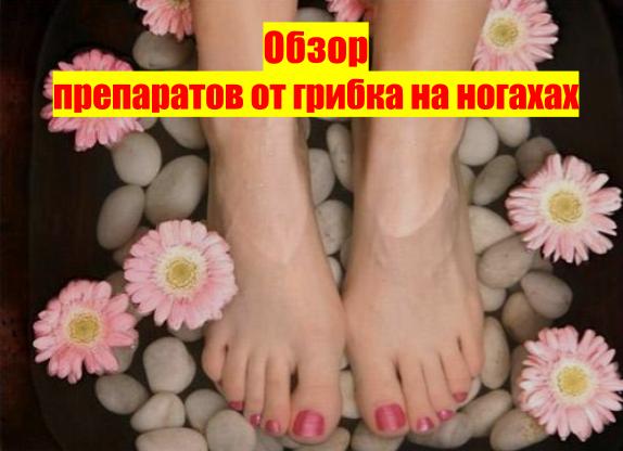 Грибок стопы у ребенка 10 лет лечение