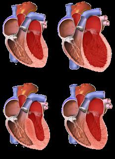 kardiomiopati restriktif hipertrofik dilatasi kavitas ventrikel miokardium amiloidosis perikarditis