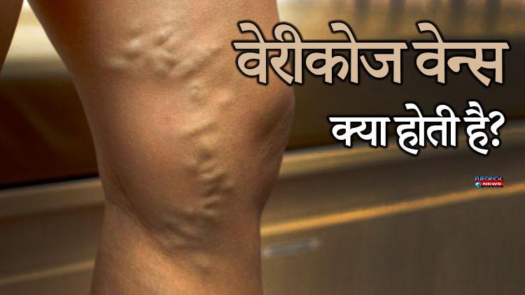 Image result for पैरों की पिण्ड़लियों के पीछे नसो का गुच्छा