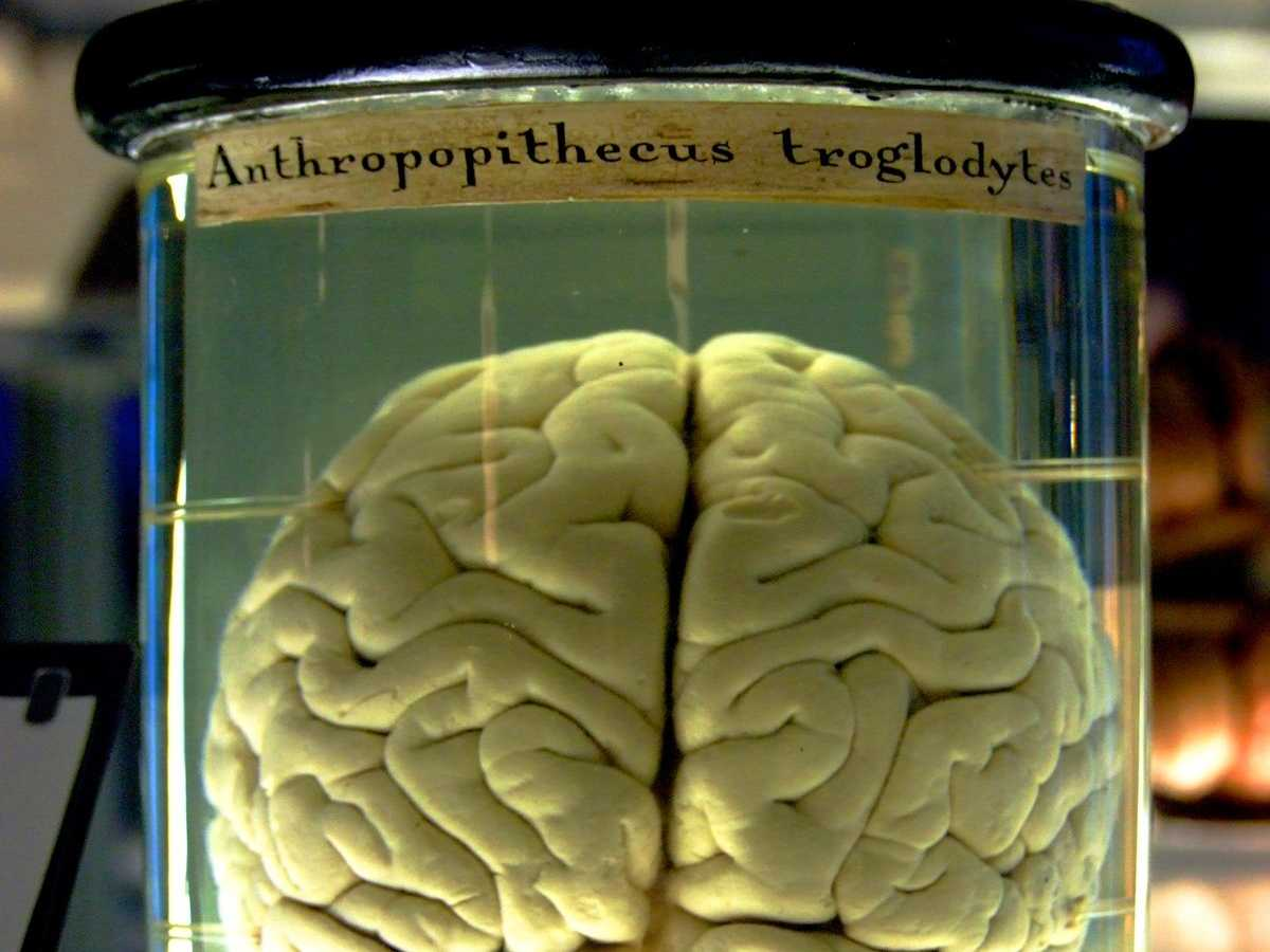 Brain in a Jar Experiment
