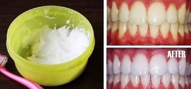 Ramuan Ajaib Untuk Putihkan Gigi Dalam 5 Menit