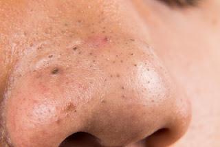 5 Traitements maison pour enlever les boutons de la peau