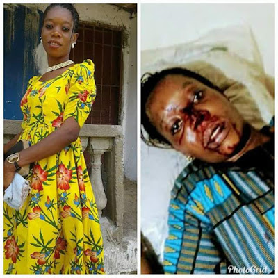 Photos: Young lady almost beaten to death by her boyfriend
