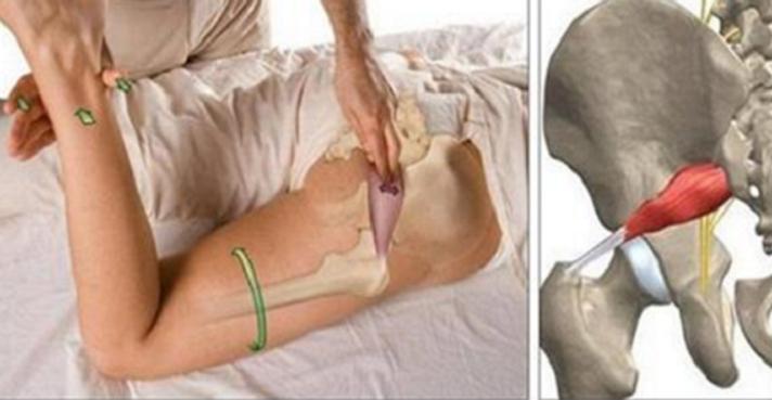 que inyecciones sirven para la ciatica