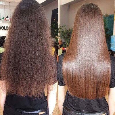 Cách trị rụng tóc sau sinh trả lại vẻ tự tin cho phái đẹp