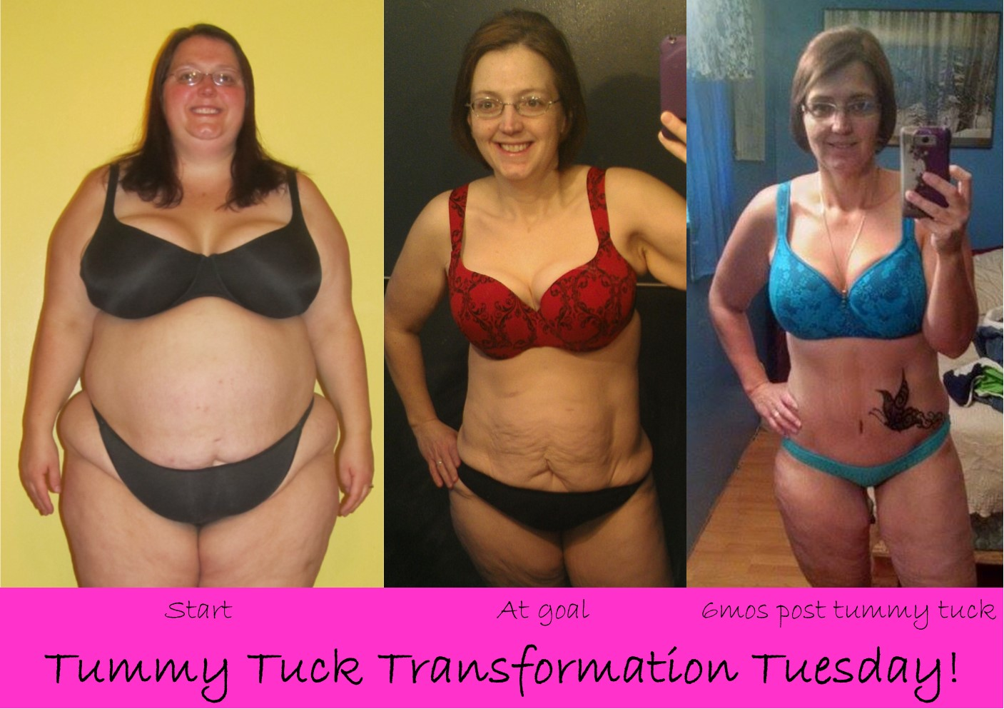 A Lesser Jen 3yr 9 Mo Weight Loss And 6 Mo Tummy Tuck Updates