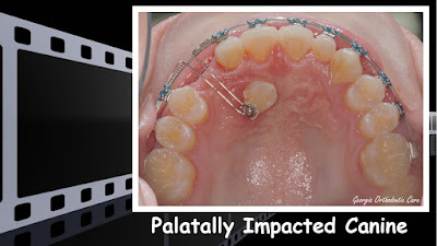 impacted teeth, impacted canine, Orthodontics, orthodontists, Clear, Invisible, Braces, Invisalign, underbite,class III, face mask, non-surgery, non-extraction, crossbite, overbite, class II, crooked, spaced, crowding, teeth, severe, jaw alignment, cosmetics, implants, children, dentists, dentistry, friendly, adults, children, family, Lawrenceville, Norcross, Buford, Hamilton Mill, Dacula, Auburn, Sugar Hill, Sugar Loaf, Doraville, Chamblee, Stone Mountain, Decatur, Collins Hill, Snellville, Suwanee, Grayson, Lilburn, Duluth, Cumming, Alpharetta, Marietta, Dekalb, Gwinnett, County, Atlanta, North Georgia, GA, Georgia, 30043, 30093, affordable, Vietnamese, Spanish, weekend, Saturday, appointments, Dr. Quang Nguyen, Georgia Orthodontic Care, Nguyen Orthodontics.