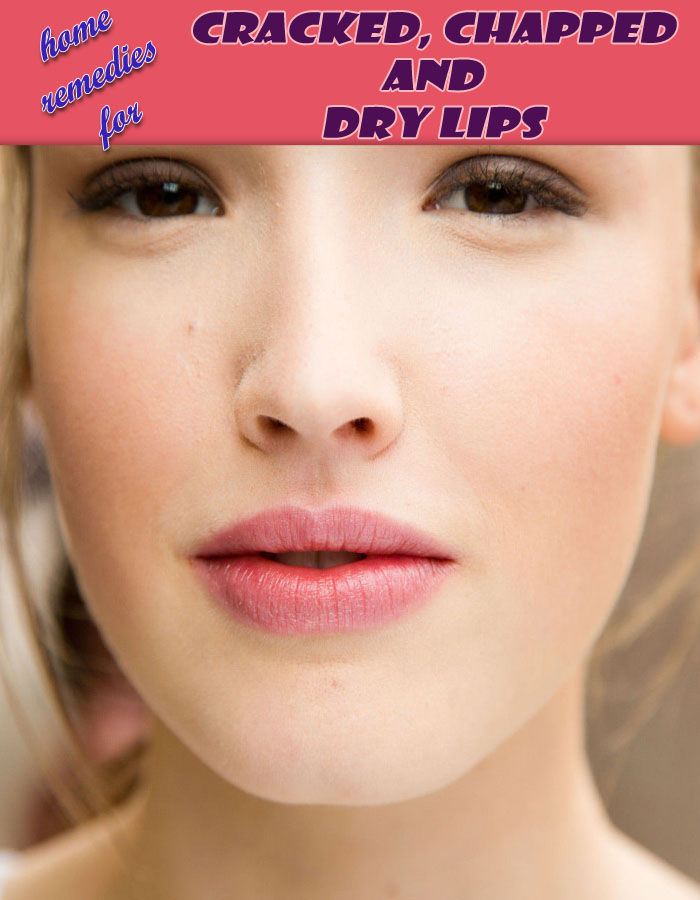 Home Remedies for Cracked, Chapped and Dry Lips