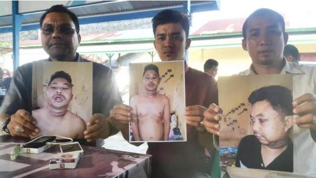 Aniaya Warga Terkait Tuduhan Narkoba, Anggota Polres Nagan Raya Dilaporkan ke Propam