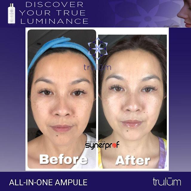 Jual Serum Penghilang Jerawat Trulum Skincare Jatiroto Lumajang
