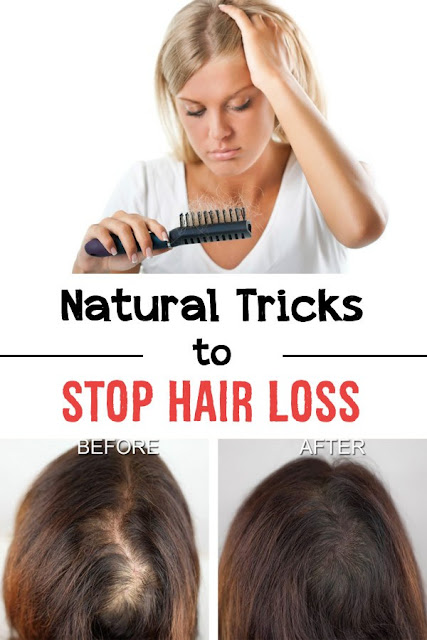 Natural Tricks To Stop Hair Loss