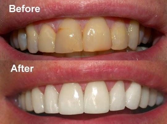 Dahsyat Gigi Anda Kuning Pijatkan Oleskan 5 Buah Ini Digigi Yang