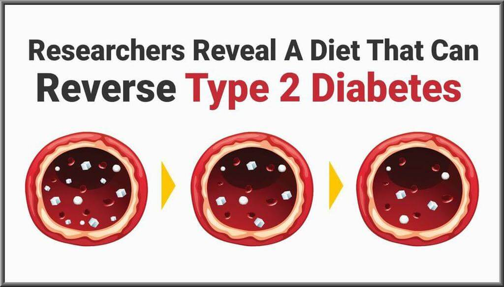 Diet That Can Reverse Type 2 Diabetes
