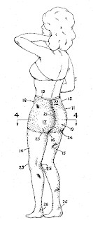Newmar's other patent (US 3,935,865) is for a brassiere