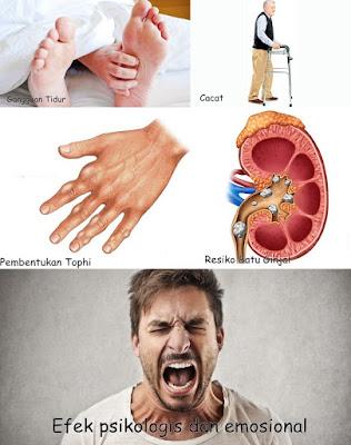 Cara Menyembuhakan Penyakit Asam Urat Secara Cepat Serta Tepat (Obat Asam Urat)