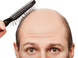 Hair Loss In Men And Treatment For Hair Loss In Women