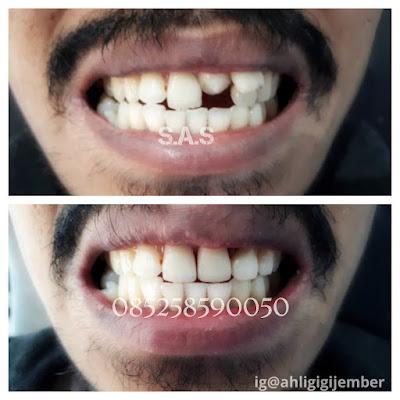 Foto hasil perbaikan gigi miring lebih kecil dan maju