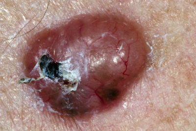 skin cancer synptoms