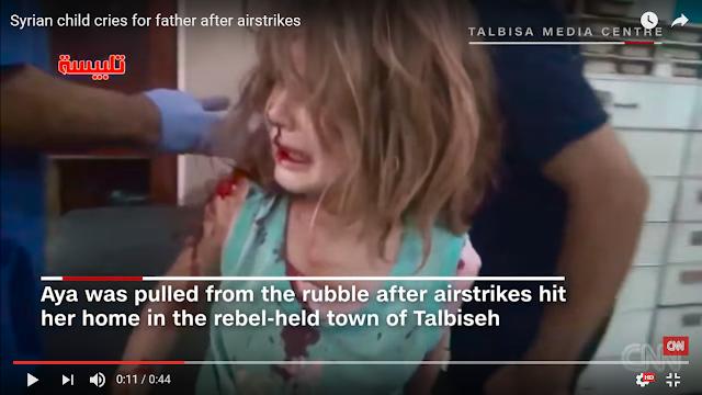 Berlumuran Darah, Gadis Kecil Korban Serangan Udara di Suriah ini Menangis Panggil Ayahnya