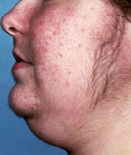 A person with a Cushing syndrome pictures