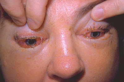 Trichinosis Infection - Eyes