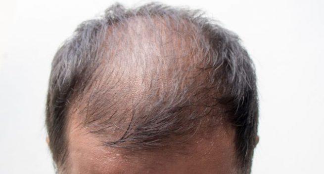 bald, baldness