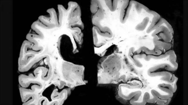 Estudio identifica alzhéimer 30 años antes de síntomas iniciales