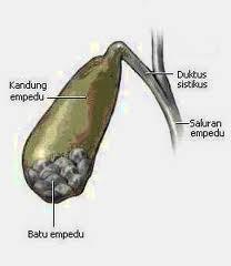 Mencegah Pembentukan Batu Empedu