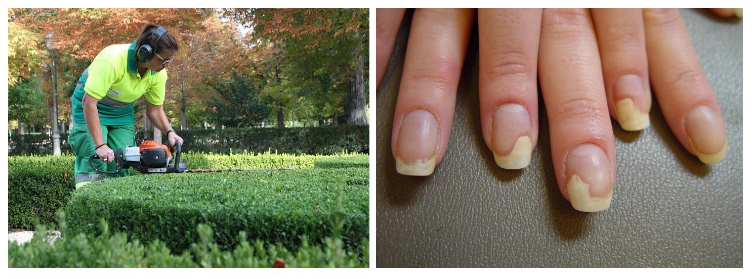 15 enfermedades de las uñas según la profesión | Salud Moderna