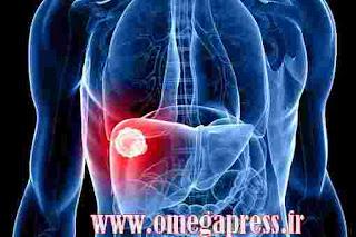 maladies hépatiques