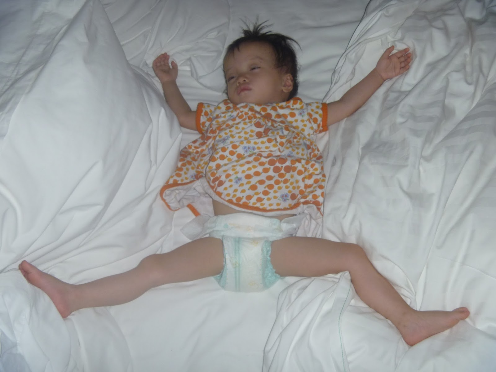 Newborn Baby Legs Bent This Is Often How She Sleeps Either Like This Or With Her