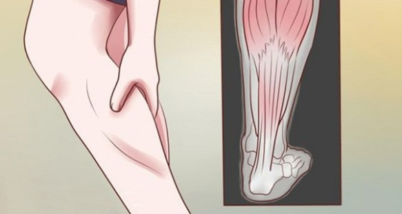 This Is Why Your Legs Cramp At Night (And How to Stop it From Happening Ever Again)