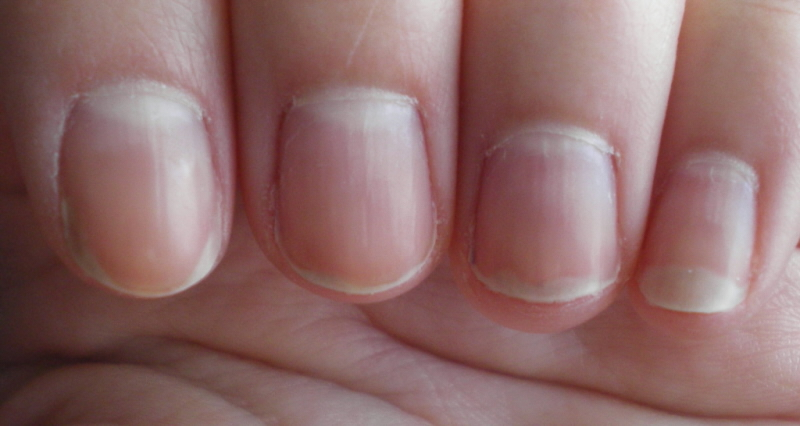 What Causes Nail Beds To Be White