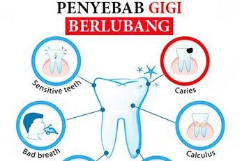 6 Penyebab Gigi Berlubang yang Menyebabkan Sakit dan Keropos