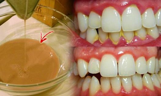 Inilah Obat Pemutih Gigi Alami Yang Mampu Usir Plak Kuning Di Gigi