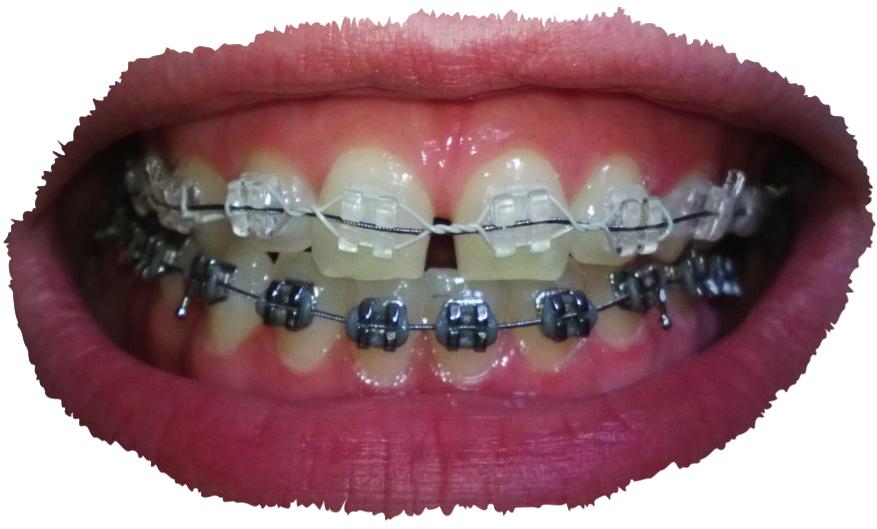 untere zahnreihe schmerzt